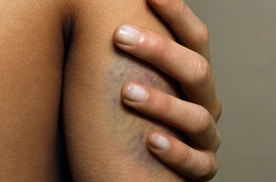 hiding bruises